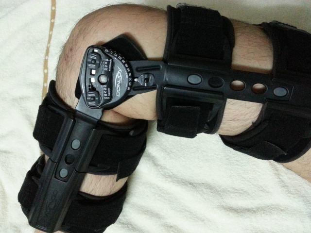 Prevent Runner's Knee